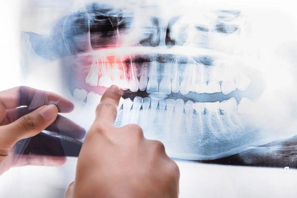 3D Dental Tomography
