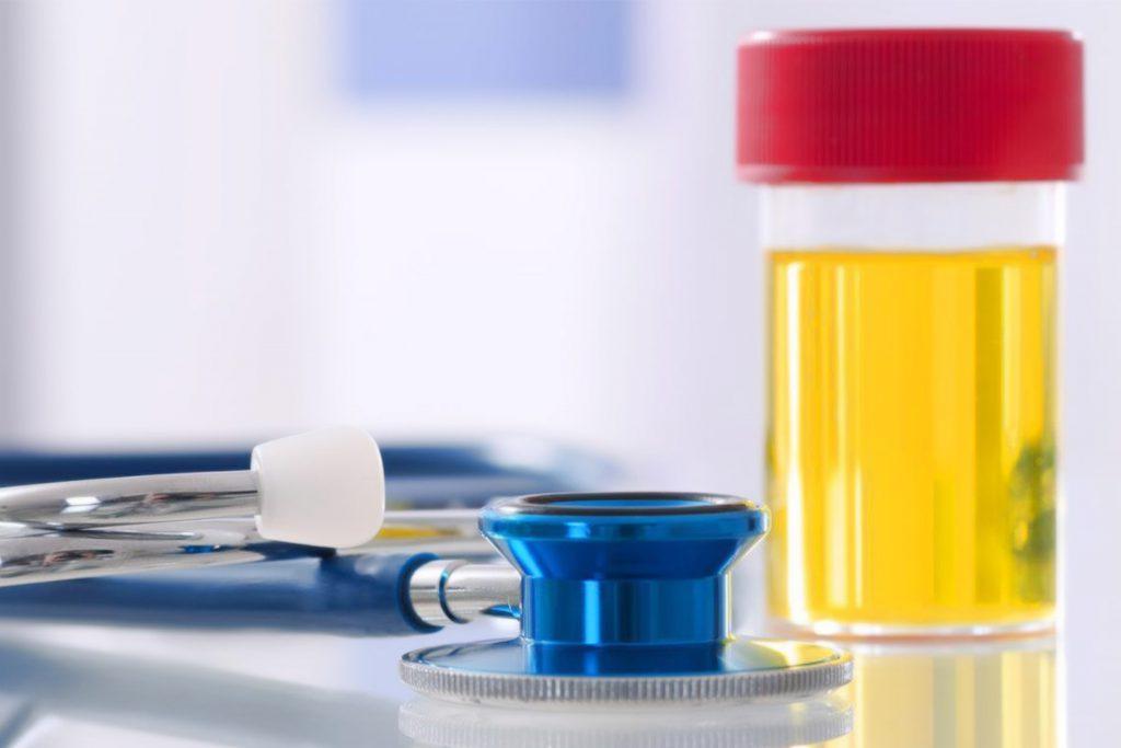 Checkup Full Urinary Analysis