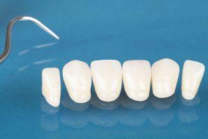 Lamine Coating - Dental Veneers