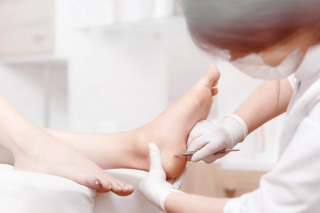 Callus Therapy - Medworld Clinic