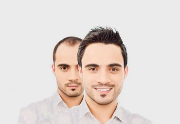 Hair Health Transplant