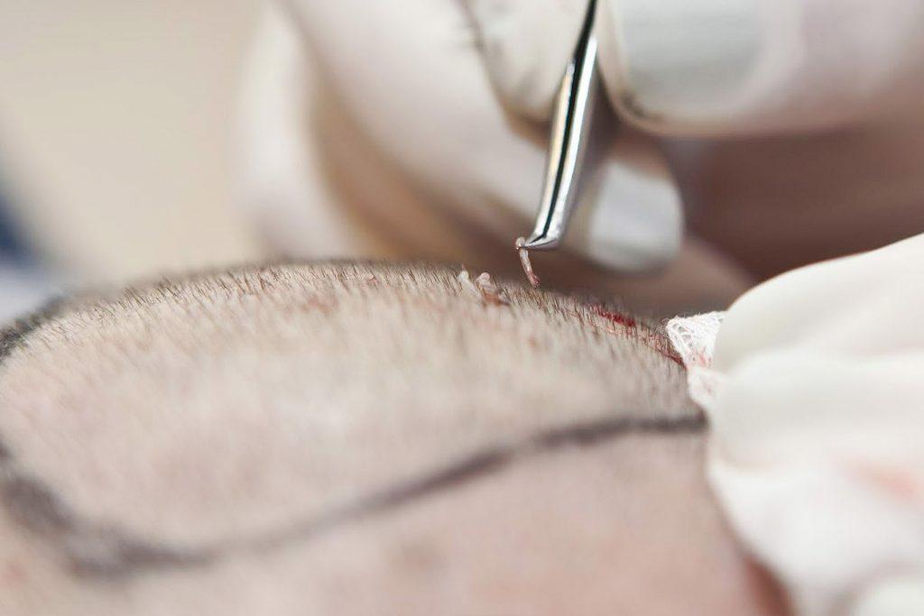 FUE method Hair Transplant