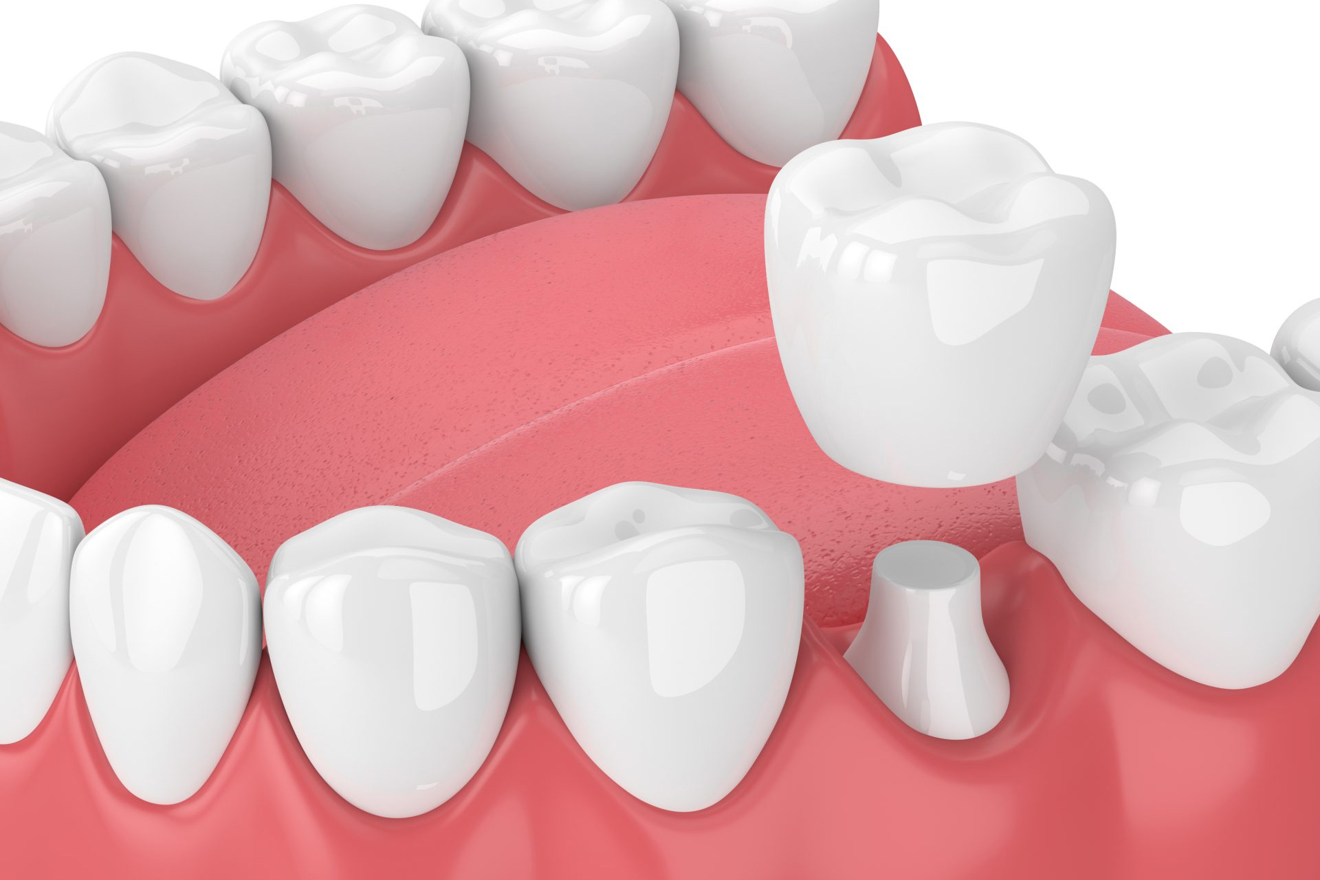 Коронки - Стоматологическая клиника Medworld