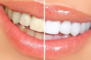 Lase Teeth whitening Bleaching Лазерное отбеливание зубов