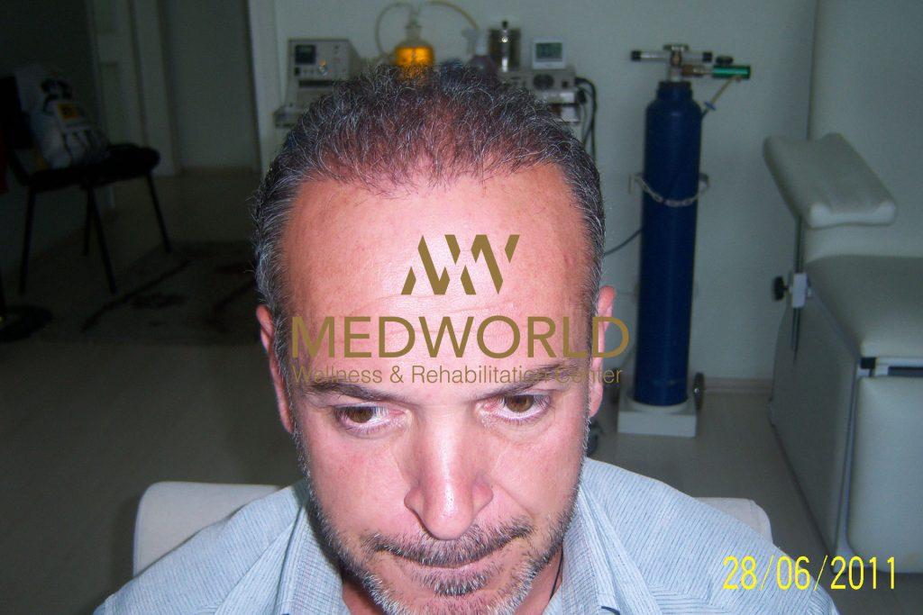 after hair transplant - Medworld Antalya