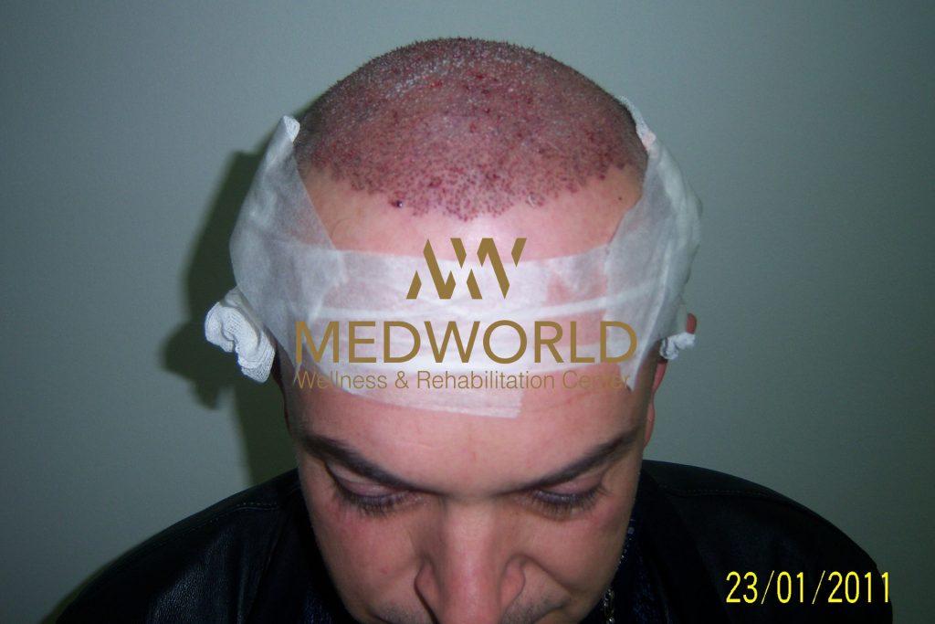 hair transplantation - after surgery - Medworld Antalya Turkey