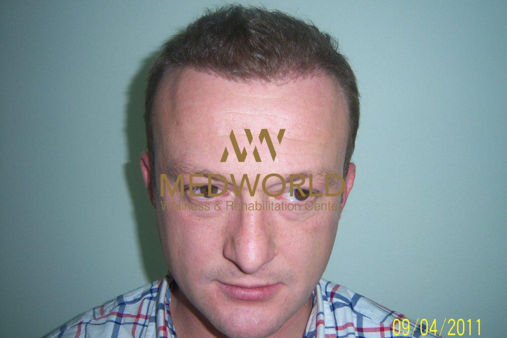 after hair transplantation - Medworld Rixos Antalya